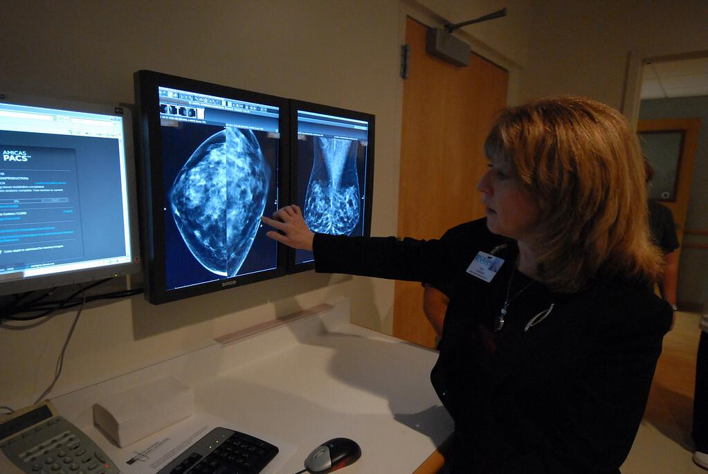 . Gillian Jones/North Adams Transcript file Lisa Harrison, director of imaging, speaks about the new digital mammography equipment at North Adams Regional Hospital.